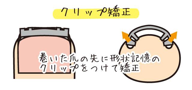 巻き爪 クリップ