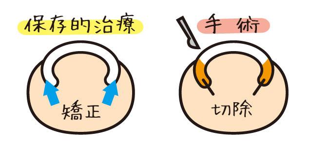 巻き爪の保存的治療 矯正