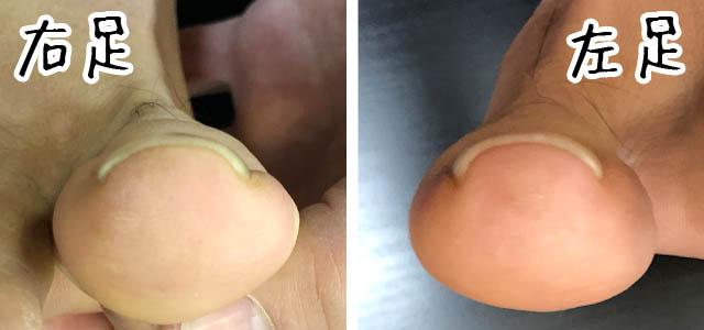 矯正前の巻き爪