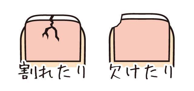 爪の割れ・欠け